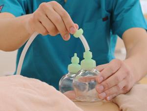 茨城妊活assist カッピング
