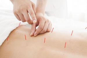 茨城妊活はり灸治療assist 鍼灸治療